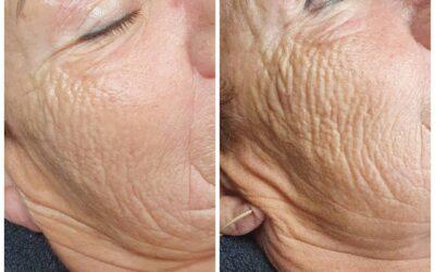Microneedling med SkinPen av huden din.